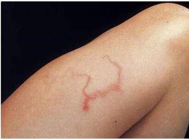 Ghê rợn với hình ảnh giun lươn 'chu du' trong cơ thể