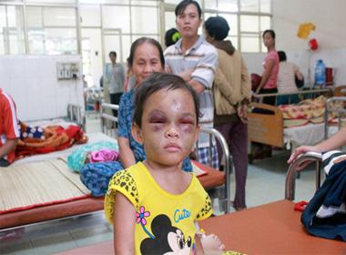 Vụ cháu bé bị bố mẹ đánh đập: Xem xét khởi tố vụ án