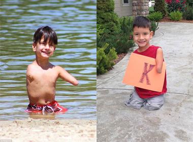 Cậu bé 5 tuổi không tay chân với nghị lực phi thường