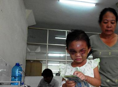 Vụ bé gái 4 tuổi bị đánh biến dạng: Ùn ùn ủng hộ tiền