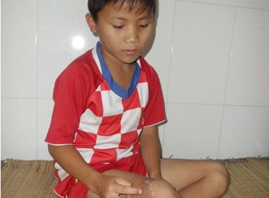 Bé trai 12 tuổi bị nhóm trai làng đánh suýt chết vì nghi... bắt trộm gà