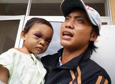 Bé gái bị đánh biến dạng: Nam thanh niên mang hộ khẩu tới nhận con đẻ