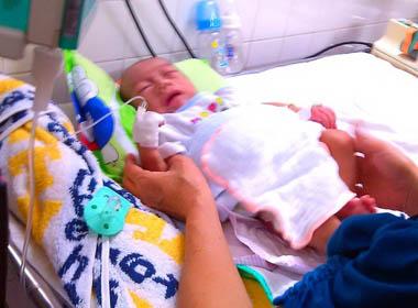 Bé trai 5 tháng tuổi phải duy trì sự sống bằng hậu môn nhân tạo