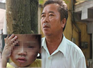 Bé 2 tuổi bị đánh dã man: Ông nội kể lại khoảnh khắc đáng sợ