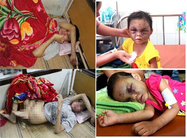 Những vụ hành hung trẻ em dã man trong tháng 9