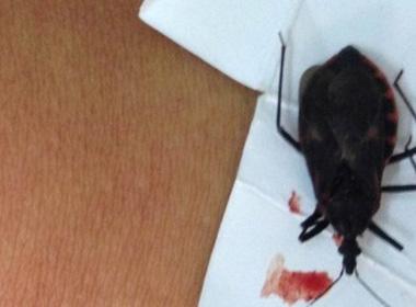 Bị bọ xít hút máu người cắn, một phụ nữ phải nhập viện