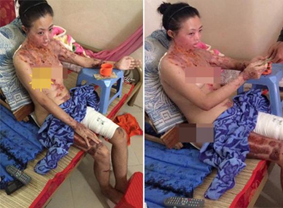 Người phụ nữ bị tạt axít đến biến dạng không dám gặp con