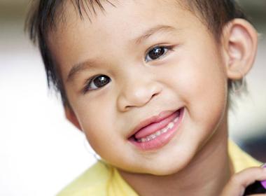 Hơn 1.000 bệnh nhi hở môi và hàm ếch sẽ được phẫu thuật miễn phí