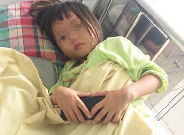 Bé gái 4 tuổi nhiễm sán lá gan vì ăn thịt bò tái