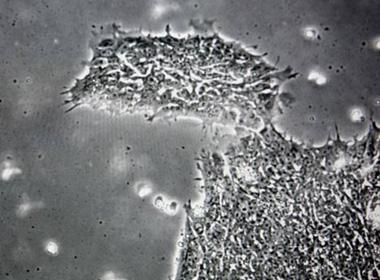 Phát hiện virus gây bệnh ngớ ngẩn cho con người