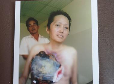 Cuộc sống mong manh của người phụ nữ mang khối u trên ngực