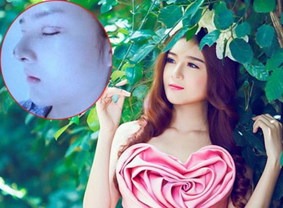 Lộ bằng chứng 'búp bê Việt' Lilly Luta phẫu thuật thẩm mỹ