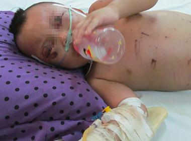 Bé 2 tuổi bị bà ngoại bạo hành đến phù não đã xuất viện