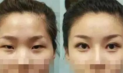 Sau nửa năm đi cắt mí mắt, nữ sinh bỗng phát hiện bị nhiễm HIV