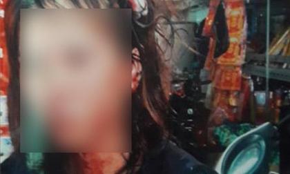 TP.HCM: Vợ bị bồ nhí của chồng đánh ghen ngược, dùng tuýp sắt đánh đập dã man