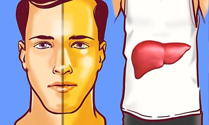 Rượu bia khiến nhiều người mắc bệnh gan, đây là những dấu hiệu cần lập tức đi khám