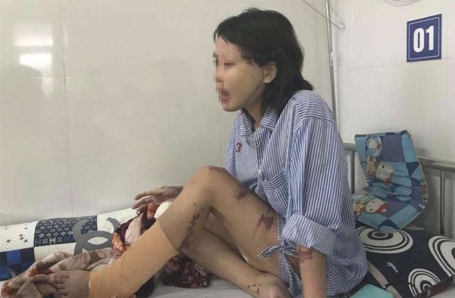 Vụ cô gái bị tạt axit: Bác sĩ ám ảnh vì một nửa khuôn mặt cháy đen
