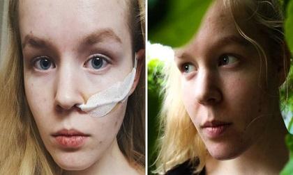 Cô gái 17 tuổi bị hãm hiếp dùng quyền trợ tử để kết thúc cuộc đời