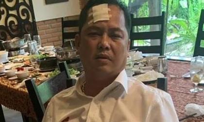 Vụ giang hồ vây xe chở công an: Người bị đánh 'phản pháo'