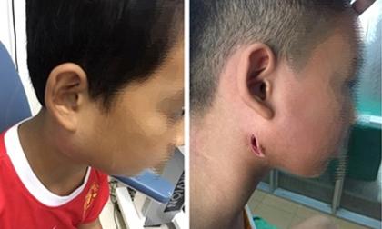 Một bệnh viện ở Nghệ An công bố 3 trẻ nhiễm bệnh Whitmore 'ăn thịt người': Cảnh báo dấu hiệu dễ nhầm lẫn với bệnh quai bị