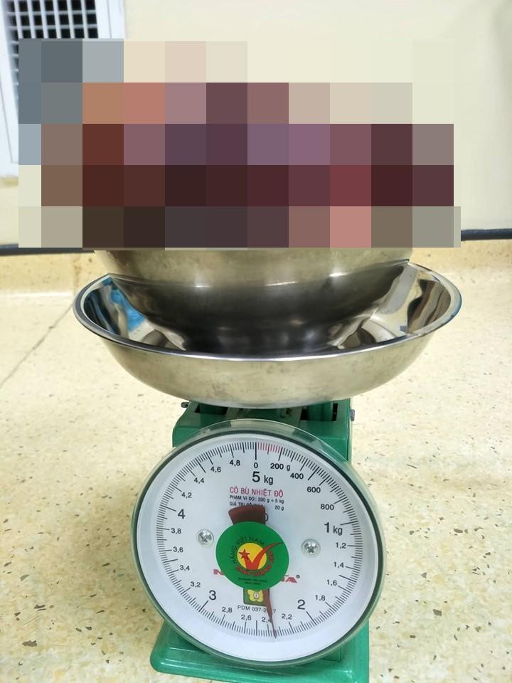 Kinh hoàng bệnh nhân 24 tuổi có khối u 2,3kg: Bác sĩ cảnh báo những triệu chứng cần đi kiểm tra ngay