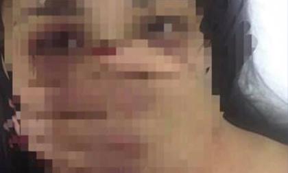 Điều tra vụ nữ thực tập sinh bị bác sĩ gạ tình, đánh đập