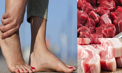 Người mắc bệnh này đừng dại mà 'chạm' vào thịt bò nếu không muốn bệnh tình ngày càng nghiêm trọng
