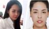 """Cô gái lột xác nhờ 'dao kéo""""'ở Nam Định: Nhận ra con nhờ giọng nói"""