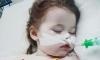 Bé gái 2 tuổi nuốt pin gây cháy phổi