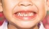 """7 bệnh răng miệng thường gặp nhất ở trẻ, cha mẹ tuyệt đối không thể """"làm ngơ"""""""