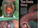 Dịch Ebola - Tin mới nhất về dịch bệnh Ebola
