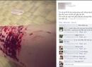 Nữ PG 9X Sài Gòn rạch tay chi chít vì thất tình