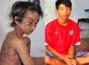 Hào Anh - Cậu bé bị tra tấn thời trung cổ ngược đãi bố mẹ
