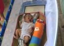 Rơi nước mắt với khuôn mặt dị tật nghiêm trọng của bé trai sơ sinh