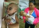 Mẹ ăn cơm từ thiện qua ngày mong cứu con bị ung bướu