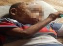 Xót thương bé 7 tuổi mắc bệnh lạ phồng rộp toàn thân