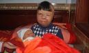Cái Tết mới của bé trai bị bố ruột tẩm xăng đốt