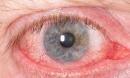 Cận cảnh loài ký sinh trùng ăn ngủ nghỉ trên kính áp tròng