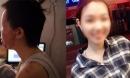Nữ sinh từng bị tạt axit chấn động Sài Gòn: 'Em vẫn không hiểu mình đã làm gì sai...'
