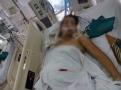 Cô giáo trẻ bị xe chèn ngang người được mổ cứu con