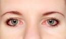 Cách phòng tránh đau mắt đỏ