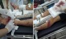 """Bênh vợ bị đánh, chồng bị nhóm """"giang hồ"""" chém nhập viện"""