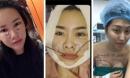 Phát hoảng với gương mặt kì dị của mỹ nhân Việt khi mới 'đập mặt xây lại'