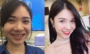 Sao Việt và những minh chứng chưa cần thẩm mỹ, chỉ cần làm răng là đã 'cứu' cả gương mặt