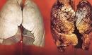 Bật mí loại quả ăn vào lọc sạch phổi cho người hút thuốc lá lâu năm ai cũng nên biết để tự cứu mình