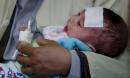 Hà Nội: 32.000 trẻ nguy cơ cao mắc sởi và nỗi lo dịch lan nhanh hơn sốt xuất huyết