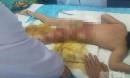 Bé gái 3 tuổi bị bỏng nặng vì xô nước nóng của cô giáo mầm non