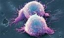 15 loại thực phẩm tiêu diệt tế bào ung thư