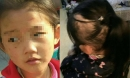 Bé gái 6 tuổi bị mẹ đẻ ngược đãi dã man khiến mặt đầy vết thương, tóc rụng thành mảng lớn