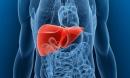 10 loại thực phẩm gây ung thư gan bạn nhất định phải tránh xa
